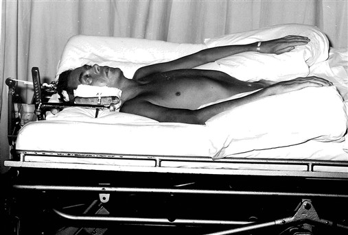 Patient in traction on a turning bed, which relieved pressure and changed position.